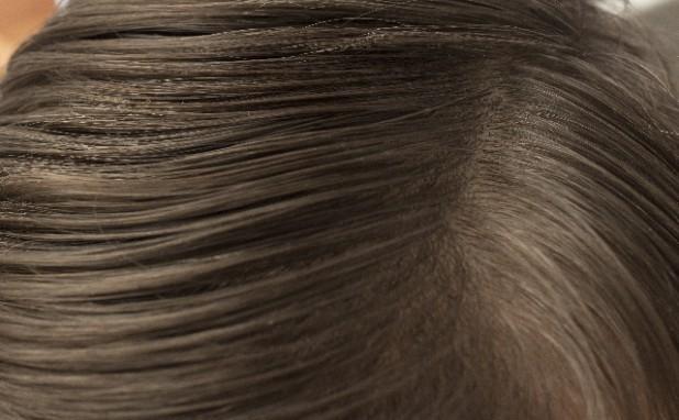 白髪染めと地肌のトラブル